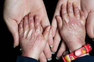 جوابیهی خانه «ایبی» به بیانیهی سازمان غذا و دارو در رابطه با پانسمان های اهدایی یونیسف